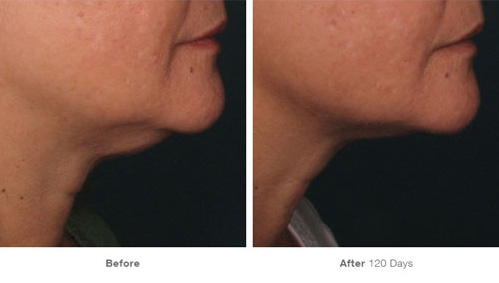 ultherapy_11