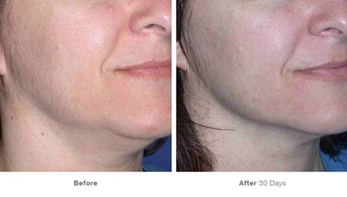 ultherapy_15