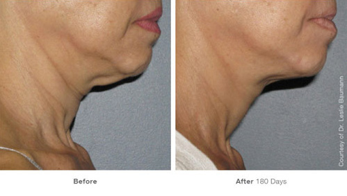 ultherapy_25