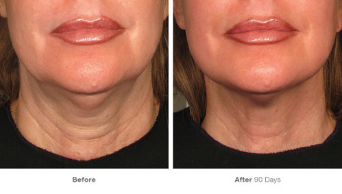 ultherapy_31