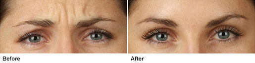 botox-before-after-5