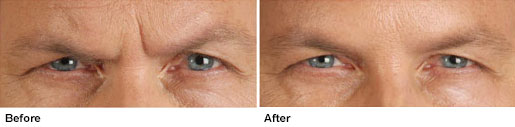 botox-before-after2