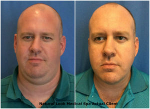 Noah Before and After Kybella part 4