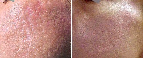 acne_scars_dr_luppino