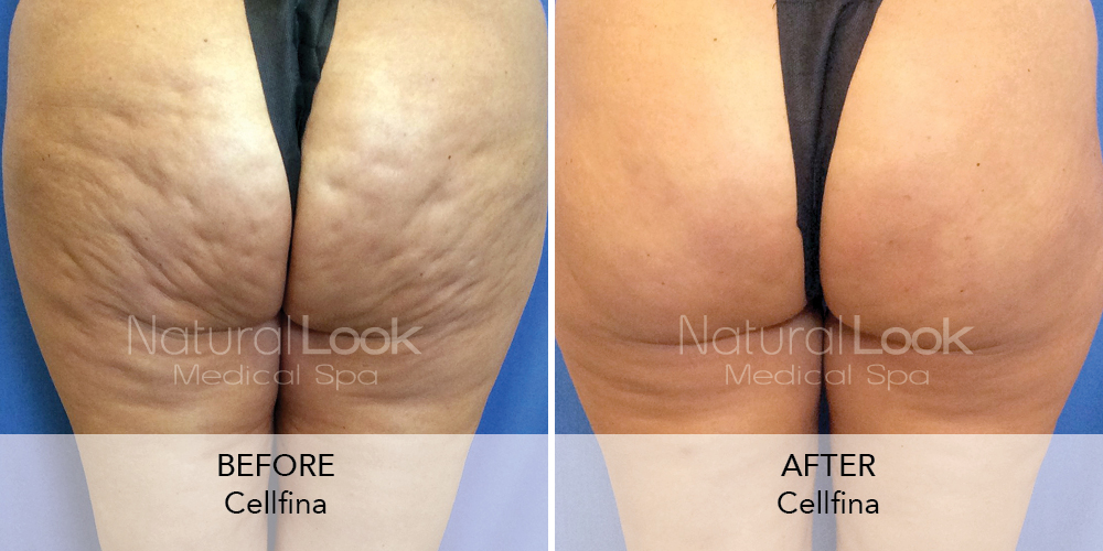 Cellfina Natural Look Client before after photo5