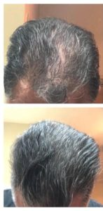 Hair Restoration: Laser Hair Restoration in 8 Weeks