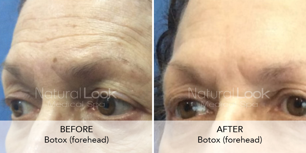 Botox Natural Look Client before after photo33