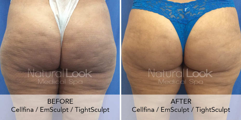 Cellfina EmSculpt TightSculpt Natural Look Client before after photo3