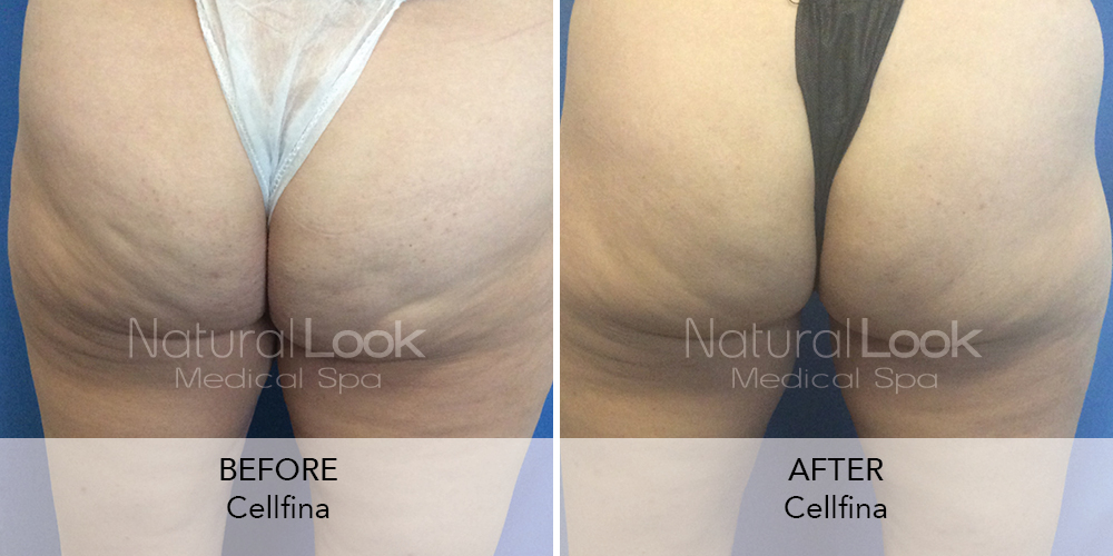 Cellfina Natural Look Client before after photo6