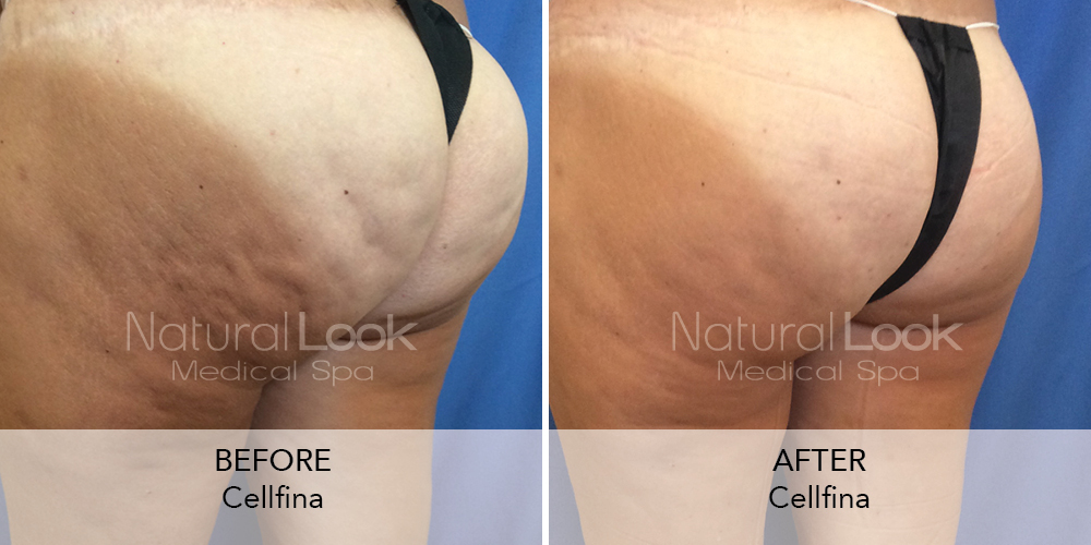 Cellfina Natural Look Client before after photo7