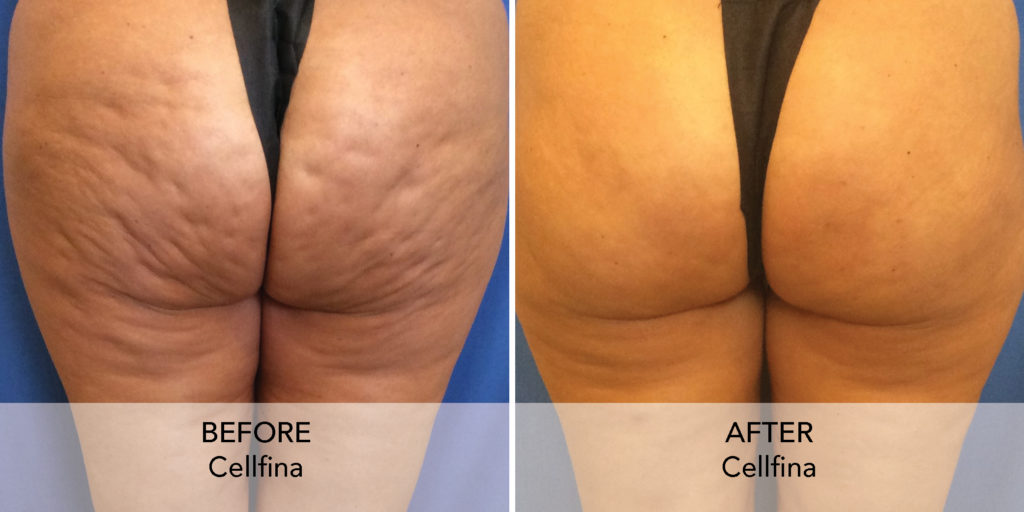 Cellfina before after 1