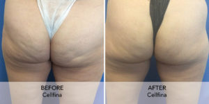 Cellfina Are You Ready To Say Goodbye To Cellulite Natural