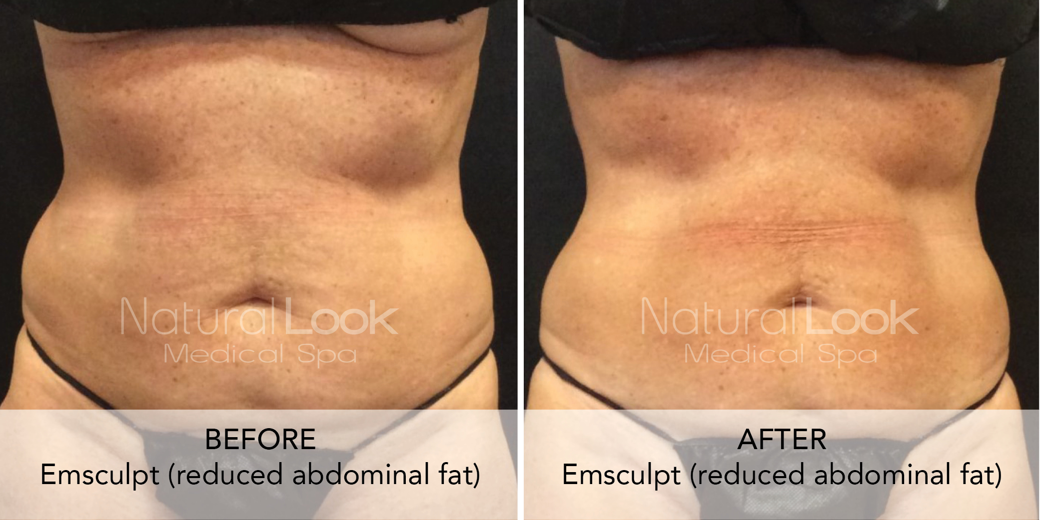 Ab sculpting and body sculpting with Emsculpt in Jacksonville, FL