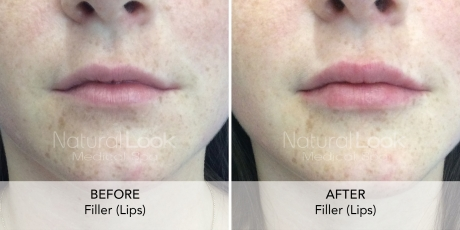 Filler Lips 4 Natural Look Client before after photo