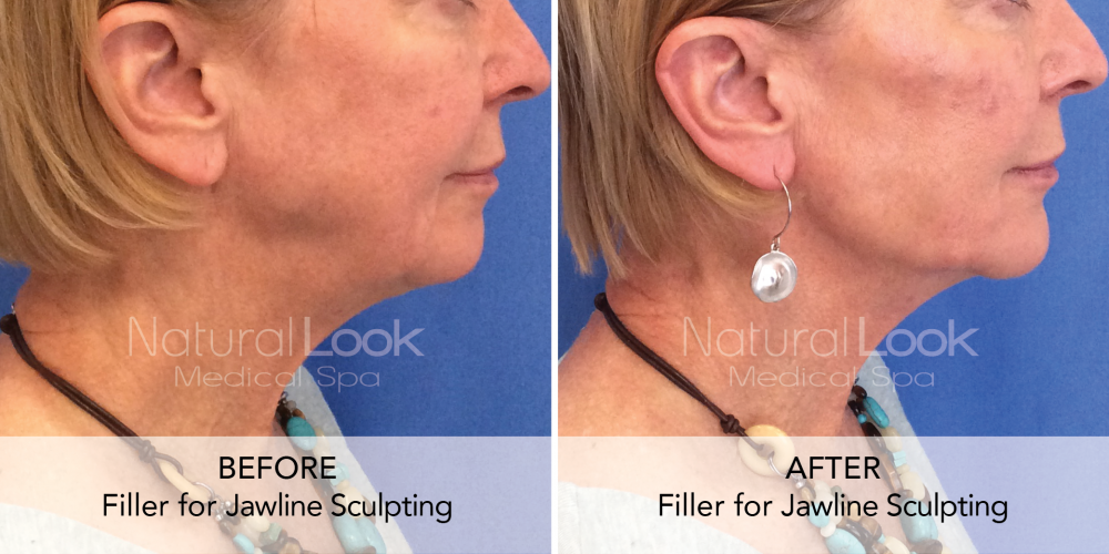 Filler Jawline Sculpting Natural Look Client before after photo