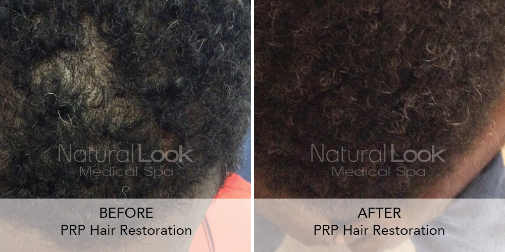 PRP Hair Natural Look Client before after photo17