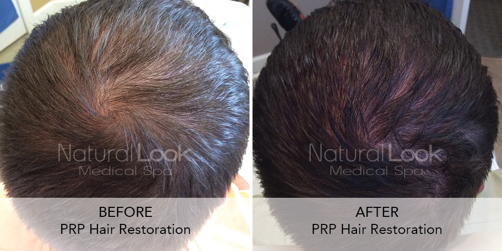 PRP Hair Natural Look Client before after photo18