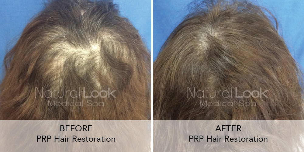 PRP Hair Natural Look Client before after photo19