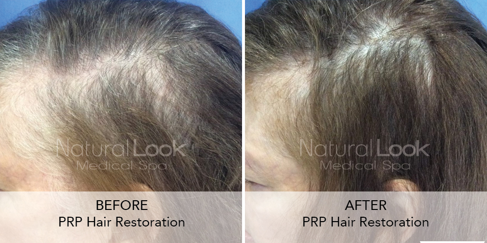 PRP Hair Natural Look Client before after photo20