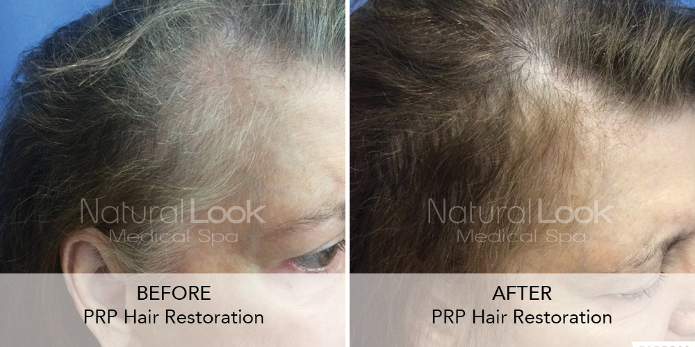 PRP Hair Natural Look Client before after photo21