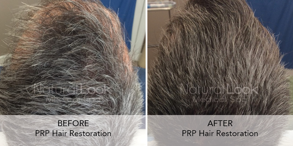 PRP Hair Natural Look Client before after photo22
