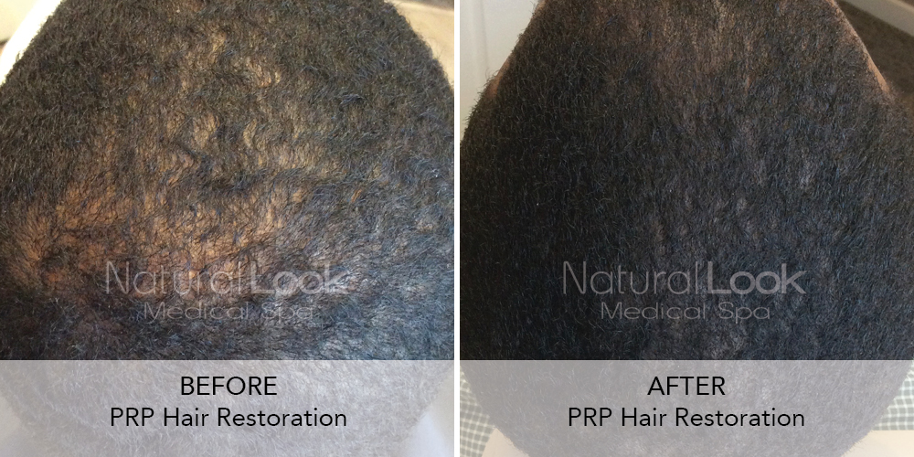 PRP Hair Natural Look Client before after photo23