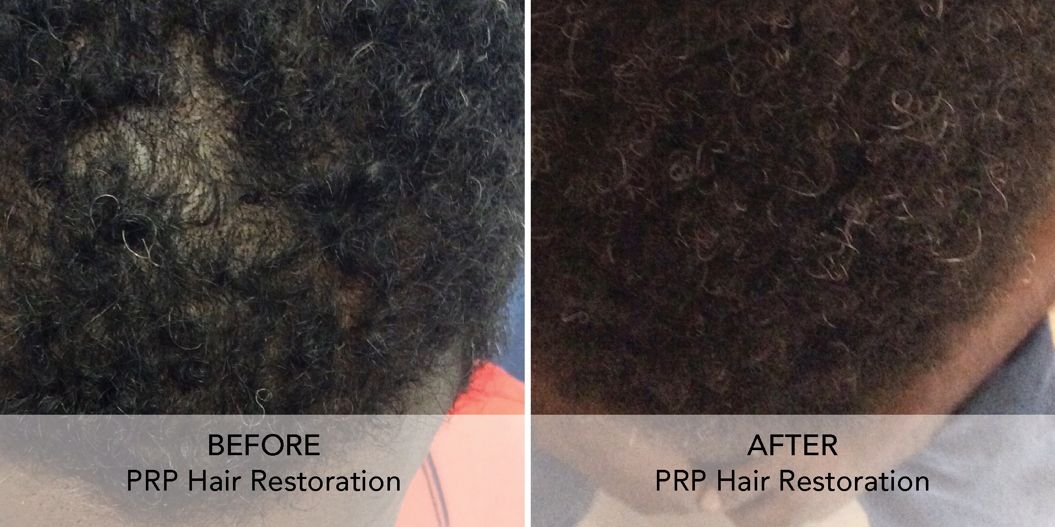 PRP Hair Restore before after 1