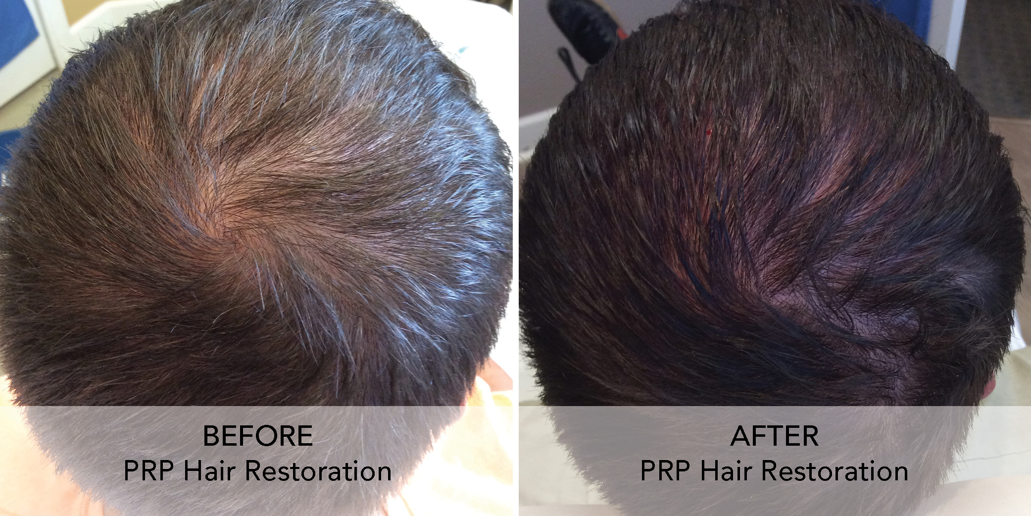 PRP Hair Restore before after 2