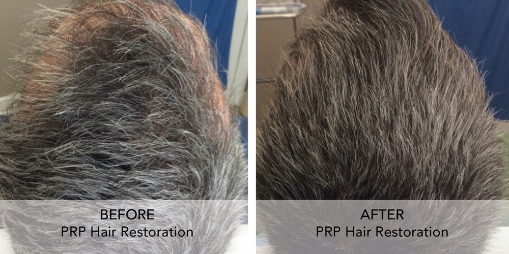 PRP Hair Restore before after 3