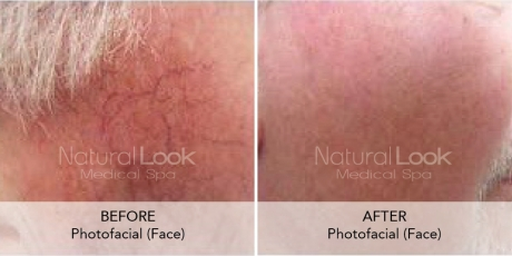 Photofacial Natural Look Client before after photo39 1