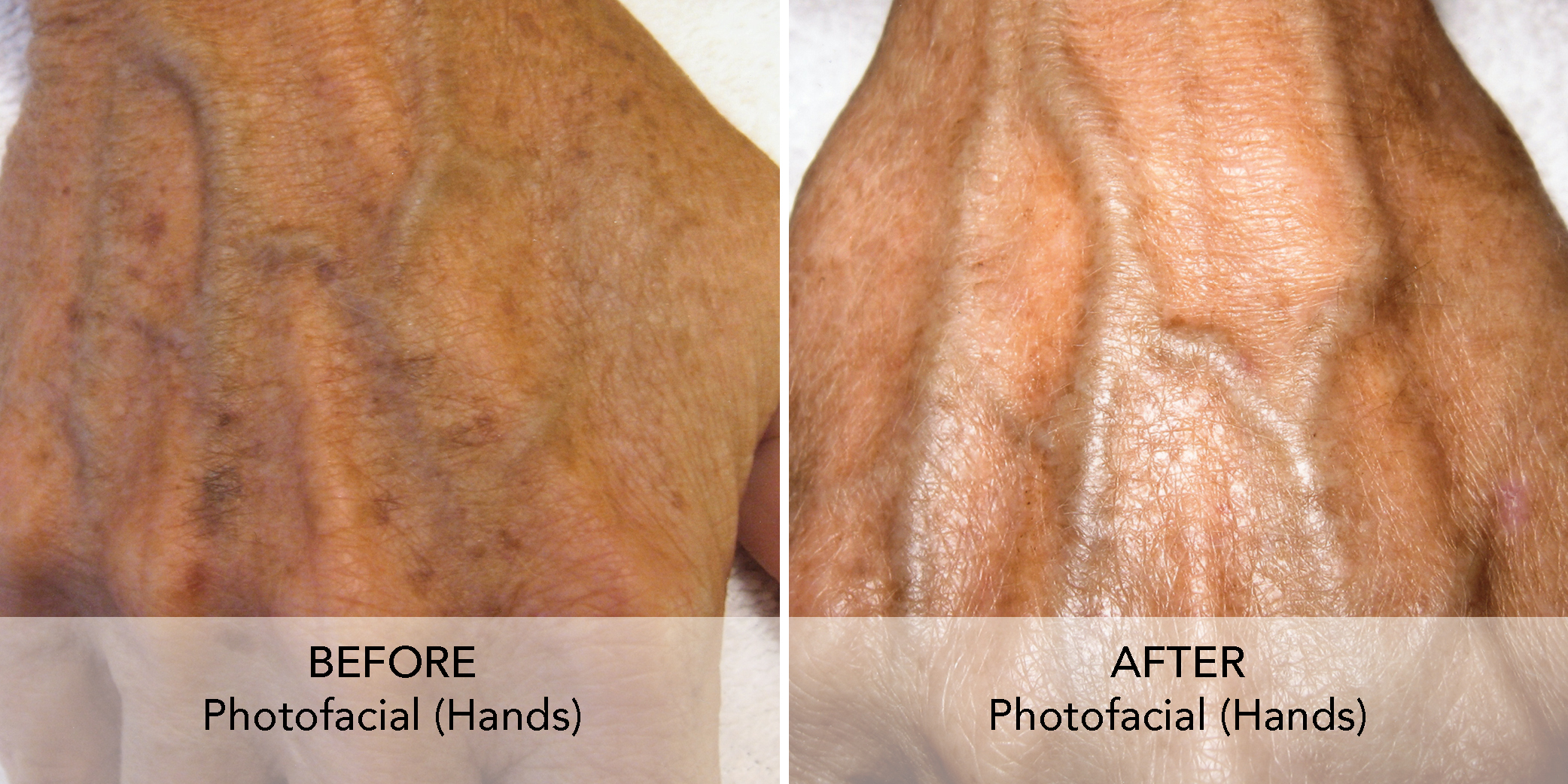 Photofacial before after 1