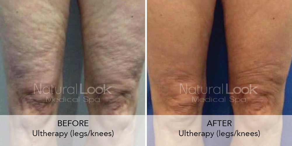 Ultherapy Natural Look Client before after photo45