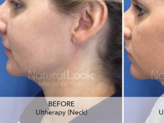 Ultherapy: Non-invasively Lift The Eyebrow, Neck, Under-chin