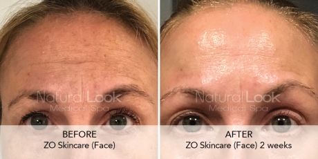 ZO Natural Look Client before after photo 1