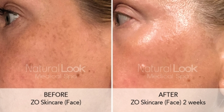 ZO Natural Look Client before after photo2 1