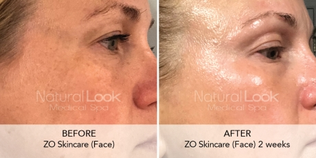 ZO Natural Look Client before after photo3 1