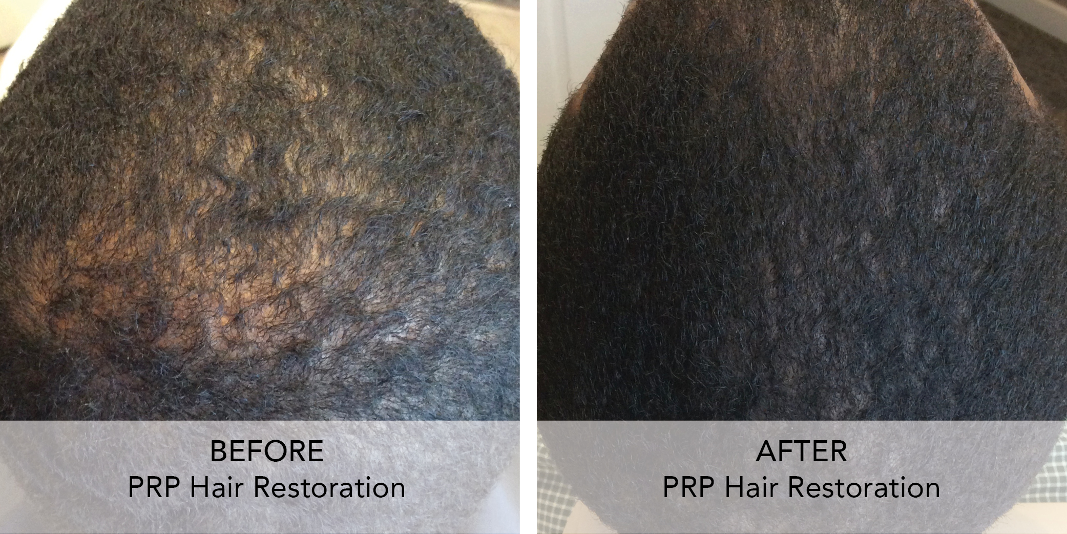 PRP Hair Restore before after 4