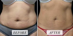 Emsculpt reduces fat and builds muscle