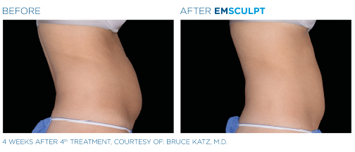 emsculpt beforeafterphotosformatted4