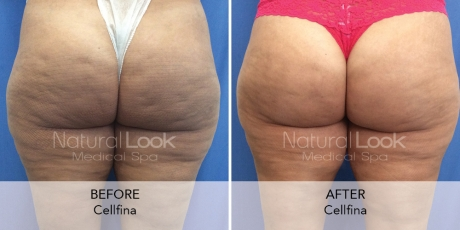 Cellfina 5 Natural Look Client before after photo