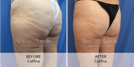 Cellfina 6Natural Look Client before after photo