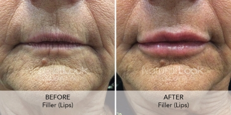 Filler Lips 3 Natural Look Client before after photo