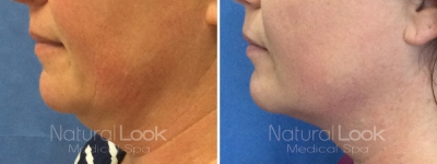 Kybella 4 Natural Look Client before after photo