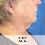 Kybella 5Natural Look Client before after photo