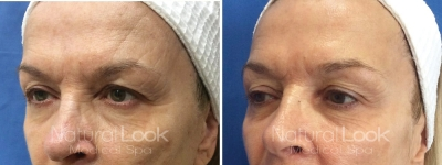 Photofacial Laser Resurfacing 1 Natural Look Client before after photo