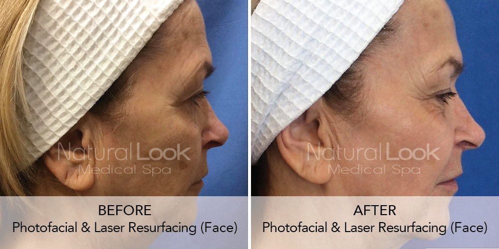 Photofacial Laser Resurfacing 2 Natural Look Client before after photo
