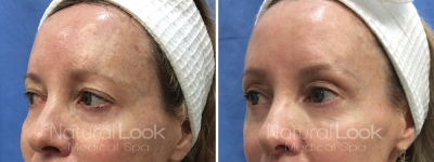 Photofacial Laser Resurfacing 3 Natural Look Client before after photo