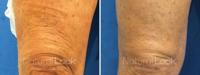 Ultherapy 7 Natural Look Client before after photo