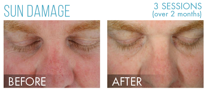Hydrafacial before after 2