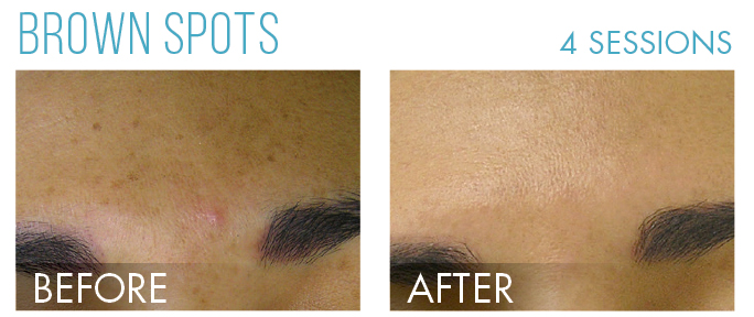 Hydrafacial before after 4